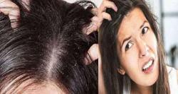 بالوں کی خشکی اور علاج