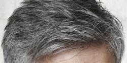 قبل از وقت سفید بال کس خطرناک بیماری کی علامت ہیں ؟ ماہرین نے خوفناک انتباہ جاری کر دیا