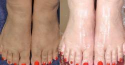 کیا آپ کے ہاتھ پاؤں بھی سردیوں میں کالے اور سخت ہوجاتے ہیں؟ تو ان طریقوں پر عمل کریں اور ہاتھ پاؤں کو خوبصورت بنائیں