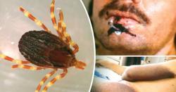 کورونا وائرس کے بعد ایک اور وائرس کی انٹری ۔۔۔ کراچی کےشہریوں میں تشویش کی لہر ڈور گئی